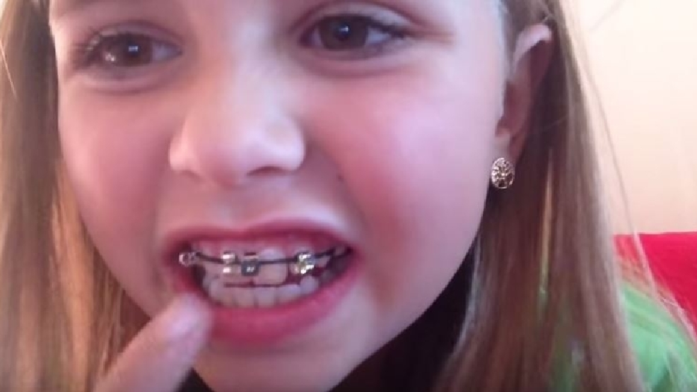 Experts warn teens diy braces trend can ruin teeth kutv experts warn teens diy braces trend can ruin teeth solutioingenieria Image collections