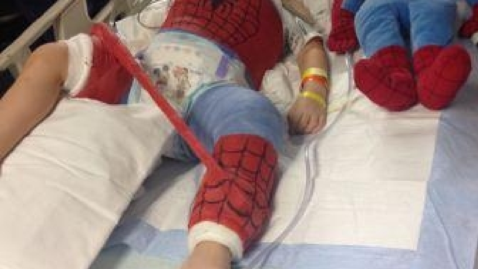 benton boy leaves hospital with full body cast like youve