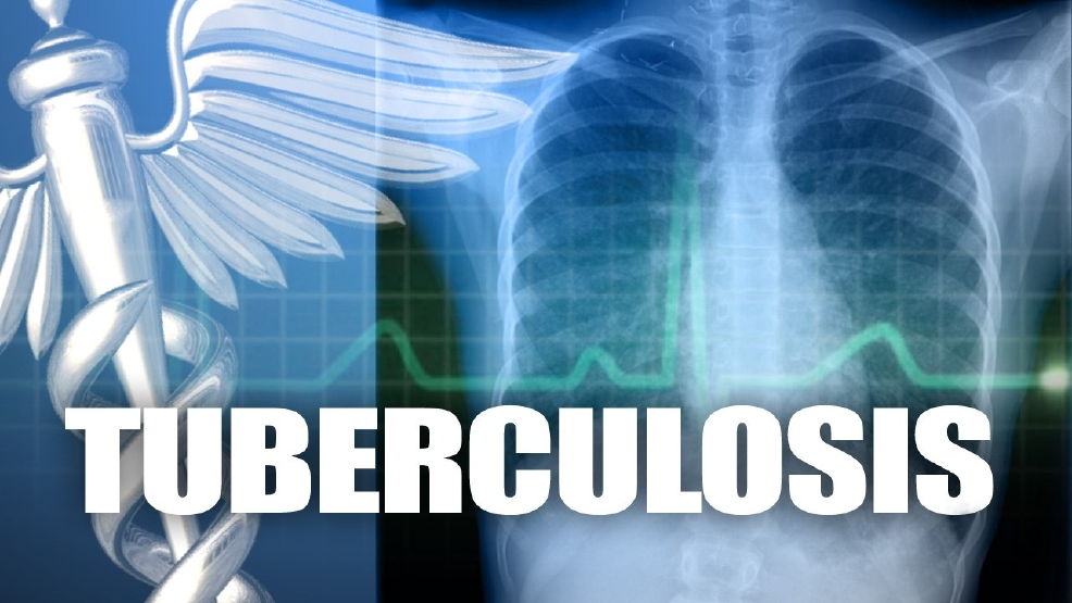 Alabama tuberculosis testing results