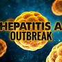16 dead from Hepatitis A outbreak in southern California